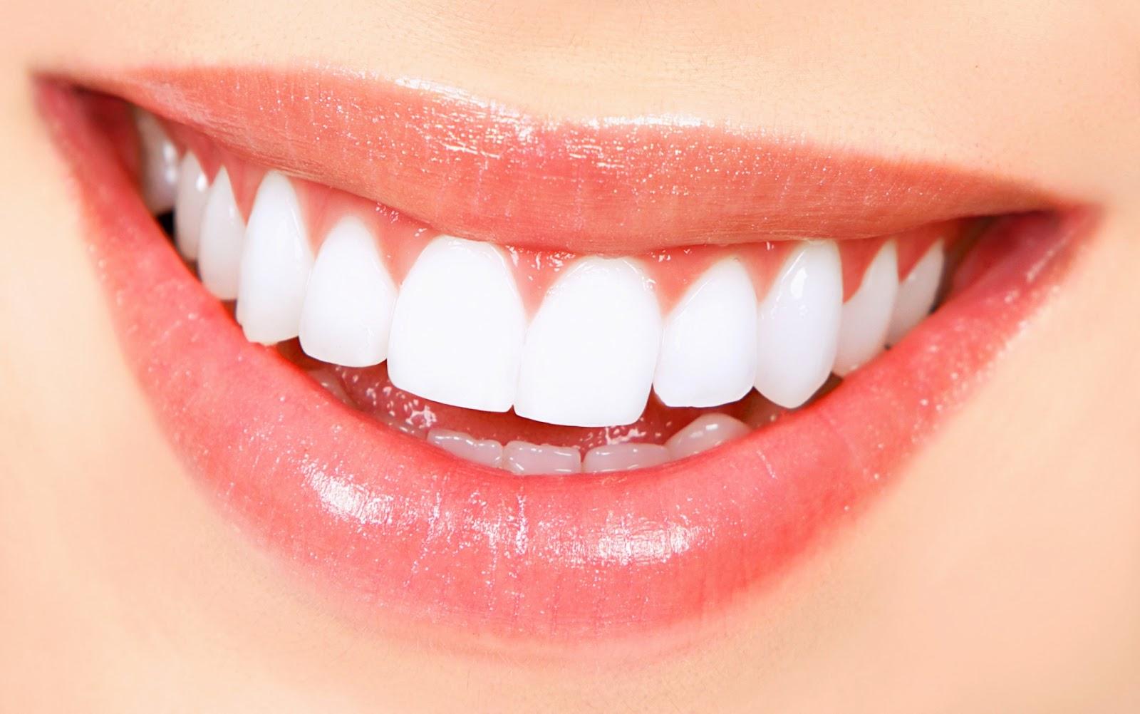 Brighter-Teeth