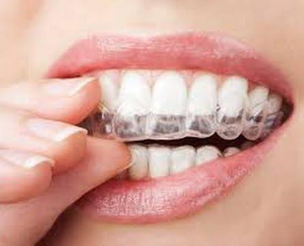 تبييض الأسنان 2